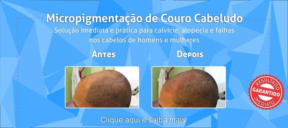 Slider couro cabeludo